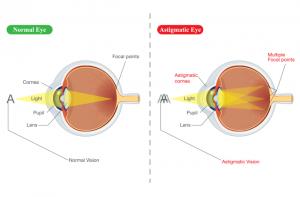 miopie astigmatism)